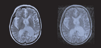High Definition MRI Scan comparison