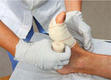 Wound Care Center Burn Healing New Jersey