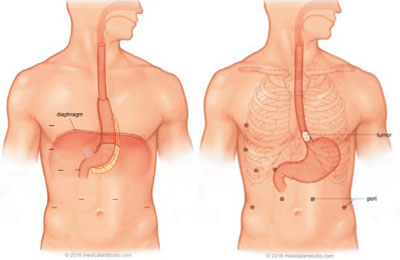 Esophagectomy