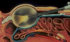 Hernia Repair in Long Branch   Inguinal, Ventral, Hiatal and