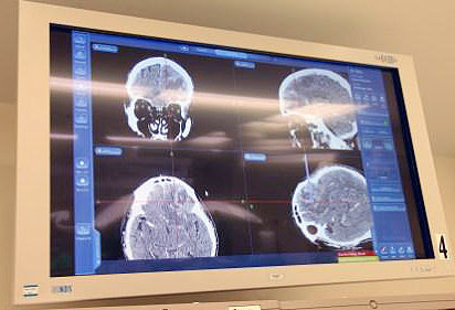 Brain scan at Monmouth Medical Center
