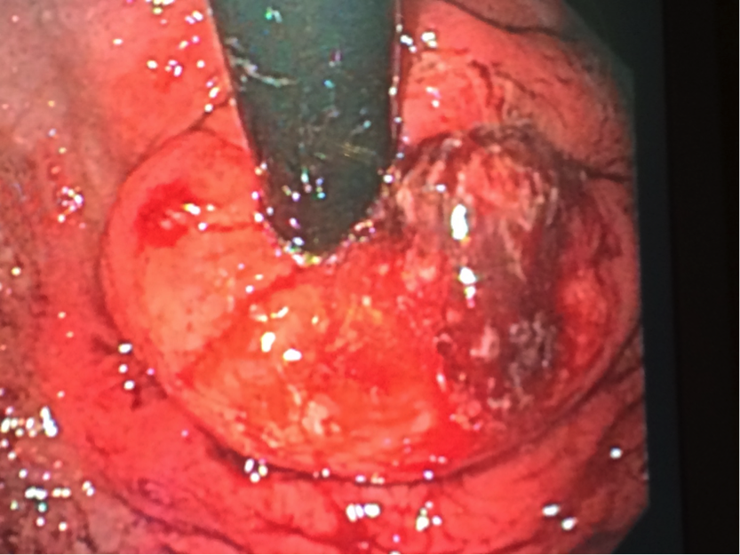 Transoral Incisionless Fundoplication