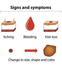 Melanoma signs and symptoms