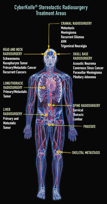 Cyberknife Cancer Treatment Saint Barnabas Medical Center