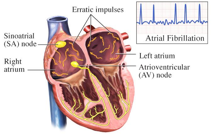 Atrial fibrillation treatment in New Jersey
