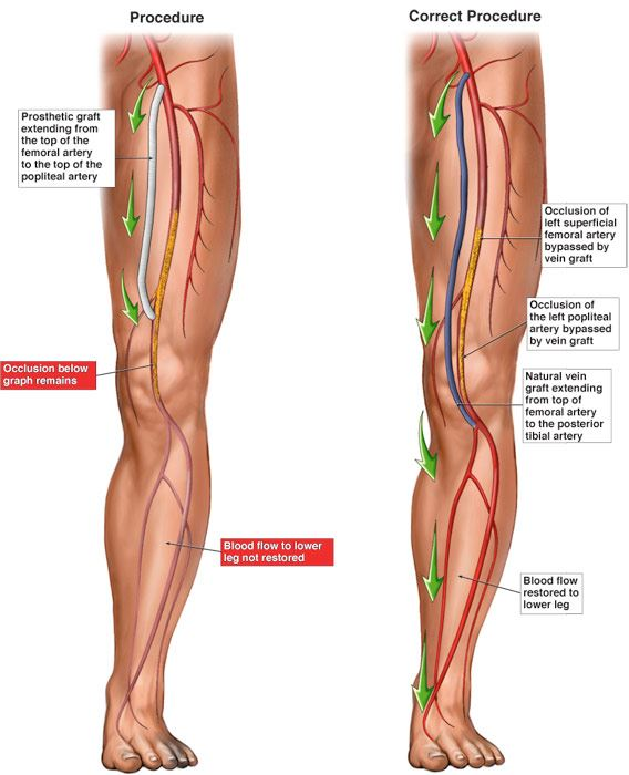 Peripheral Vascular Bypass